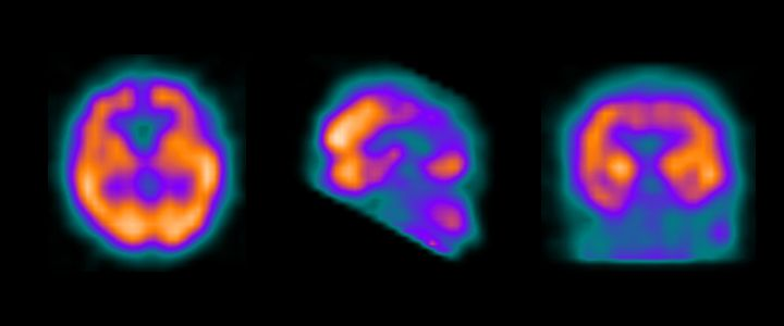 Spect Cerebral de perfusión