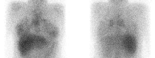 Gammagrafía con citrato de Galio