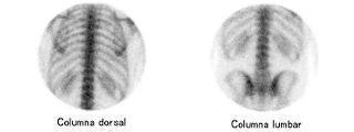 Gammagrafía ósea
