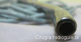 Cirugía radioguiada