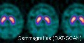 Gammagrafías (DAT-SCAN)